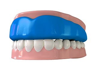 Model of an athletic mouthguard.