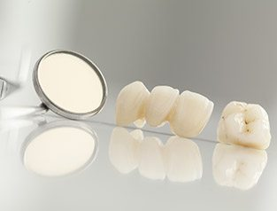 dental crowns and bridges on cabinet