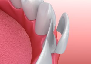 Model of teeth and veneers in Greenfield.